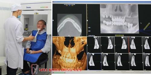 Chụp CT3D tại chỗ.