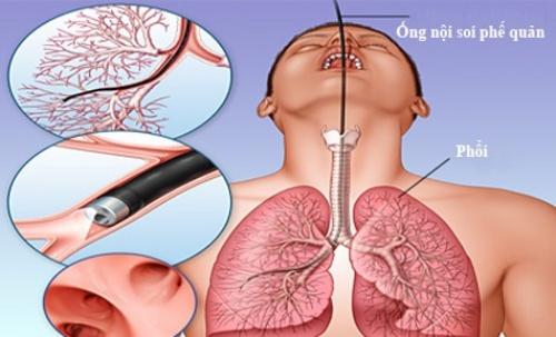 Hình minh họa thủ thuật nội soi phế quản phổi.