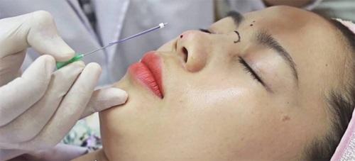 Cấy chỉ vào mũi pảhi trải qua quy trìnhgây tê, dùng kim ấn vào sóng mũi để đưa các sợi chỉ vào, đồng thời dùng kim tiêm bơm collagen vào.