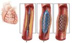 Can thiệp đặt stent mạch vành như thế nào