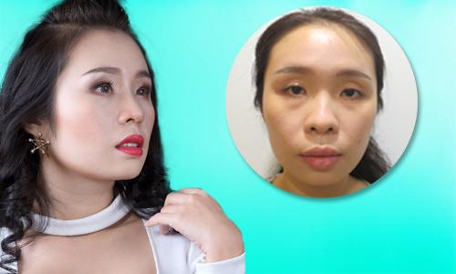 Diễn viên hài Việt Trang sửa mũi để được đóng vai đẹp