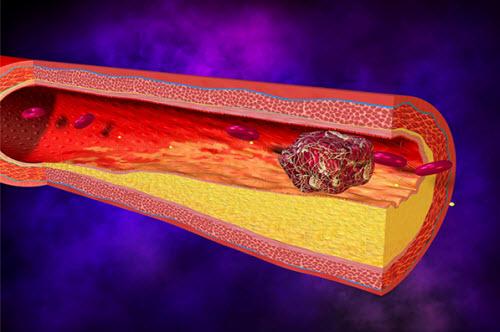 Cục máu đông tắc nghẽn gặp mảng xơ vữa lòng mạch, gây ra hiện tượng đột qụy.