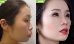 Nhan sắc khác biệt của diễn viên hài Việt Trang sau nâng mũi