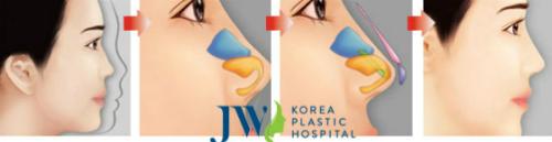 Nâng mũi S line kết hợp sụn nhân tạo và sụn tự thân tạo dáng mũi chuẩn đẹp.