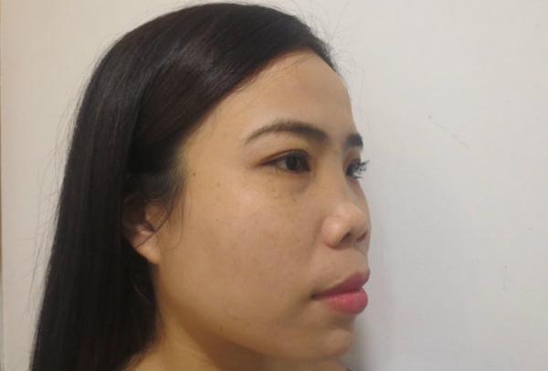 Cận cảnh chiếc mũi hoại tử của Hoa Hồng trước phẫu thuật.