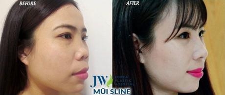 Hoa Hồng trước và sau khi nâng mũi S .