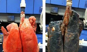 Lá phổi đen kịt của người 20 năm hút thuốc lá