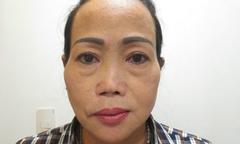Chỉnh sửa dáng mũi cho người phụ nữ chín lần thẩm mỹ thất bại