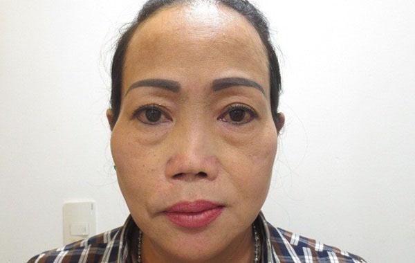 Chiếc mũi bất thường khiến chị Thu Loan mặc cảm, bị cười chê.