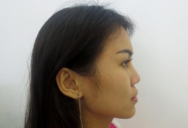 Cận cảnh dáng mũi thấp của Việt kiều 9x. Tiến sĩ, bác sĩ Nguyễn Phan Tú Dung - Giám đốc Bệnh viện thẩm mỹ JW Hàn Quốc - trực tiếp thăm khám và đưa ra kỹ thuật ứng dụng đối với trường hợp của Ngọc Hạnh.