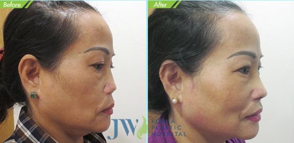 Dáng mũi của chị Loan khác biệt sau khi được tái phẫu thuật.