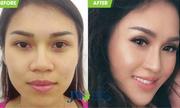 Nữ Việt kiều 9x thay đổi khuôn mặt nhờ nâng mũi