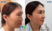 Nâng mũi bao lâu mới lành và đẹp tự nhiên?