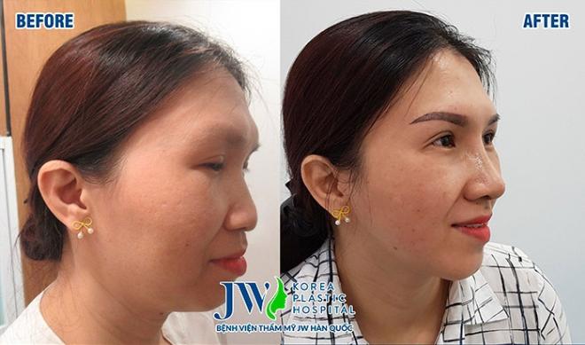 Trường hợp dáng mũi thay đổi sau 10 ngày phẫu thuật.