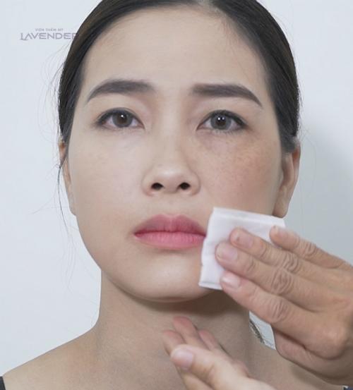 Chị Thùy Dung (30 tuổi, Hà Nội) suốt 6 năm nay phải làm quen với việc make up để che nám. Khi tham gia chương trình Giấu nám hay xóa nám, lần đầu tiên chị dám tẩy trang và công khai gương mặt bị nám dàymình với mọi người.