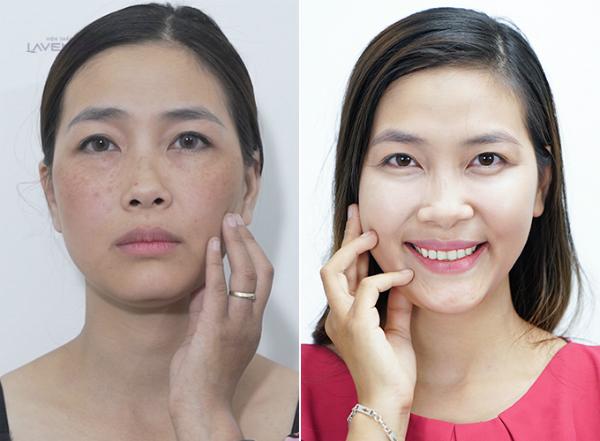 Quyết định chia tay việc makeup hàng ngày để bước vào điều trị nám tận gốc, chị Dung được thực hiện liệu trình Mela Extra tại Lavender.