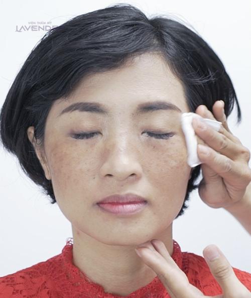 Nám dày đặc hai bên má lộ ra sau khi lớp phấn trang điểm được tẩy sạch trên da của chị Tố Vân (34 tuổi, Hà Nội). Chị đã chấp nhận sống chung với nám suốt 10 năm nay vì dường như đã mất hi vọng chữa khỏi nám.