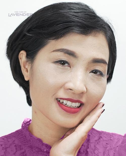 Tham gia chiến dịch của Lavender, chị Vân tẩy nám được tới 80% sau liệu trìnhMela Extra. Ai cũng nói trông tôi giống như một người khác, xinh đẹp và trẻ trung hơn rất nhiều, chị Vân cho biết.