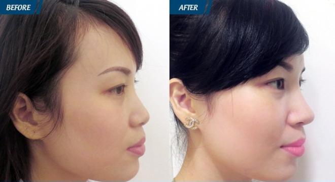 Nâng mũi đảm bảo an toàncần thực hiện đúng kỹ thuật và phù hợp với cơ địa.