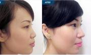 Nâng mũi có gây ung thư và ảnh hưởng sức khỏe không?