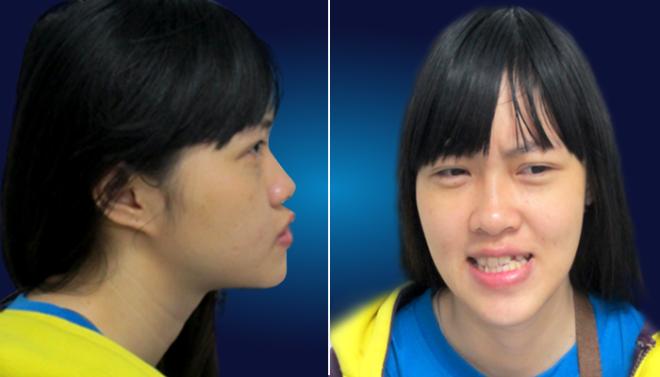 Cô gái trẻ từng trầm cảm vì khiếm khuyết ngoại hình