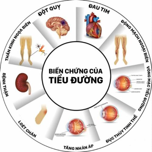Người tiểu đường không được chữa trị kịp thời có thể gây ra những biến chứng ảnh hưởng đến mắt, thận, thần kinh, tim...