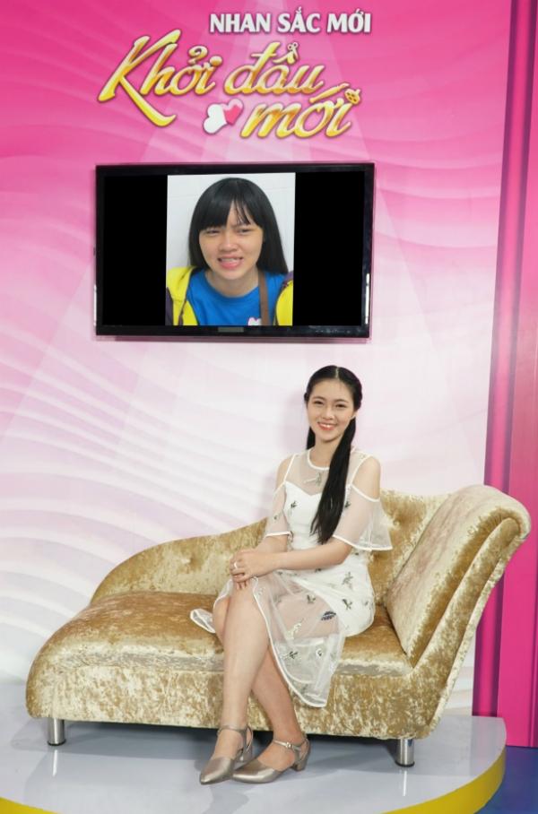Cô gái trẻ từng trầm cảm vì khiếm khuyết ngoại hình - 4