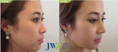 Tiến sĩ, bác sĩ Nguyễn Phan Tú Dung - Giám đốcBệnh viện thẩm mỹJW Hàn Quốc cho biết, chăm sóc mũi đúng cách là điều kiện quan trọng để có dáng mũi đẹp