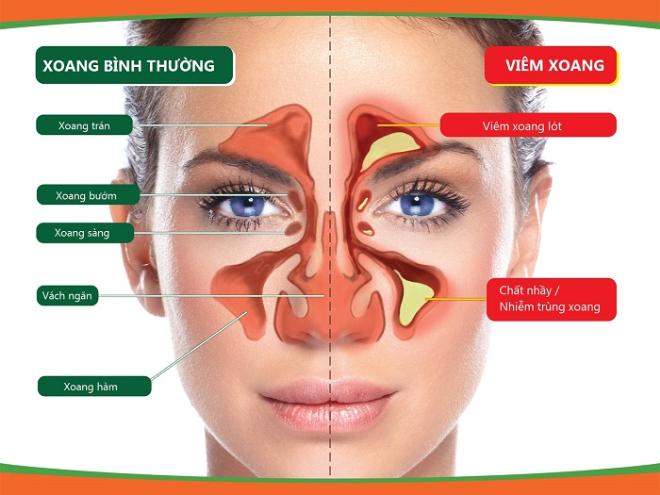 Viêm xoang có nâng mũi được không và lưu ý trước khi thực hiện