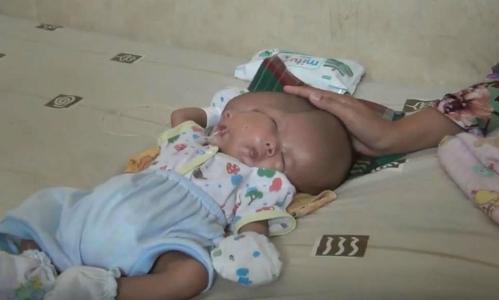 Bé Andika hai tháng tuổi sinh ra có hai mặt, hai não. Ảnh: NF.