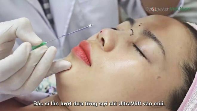 Bác sĩ tư vấn cách chọn chỉ sinh học nâng mũi không biến chứgChọn chỉ sinh học nâng mũi an toàn, không biến chứng theo tư vấn của bác sic - 1