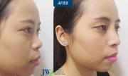 Chuyên gia tư vấn cách cải thiện mũi tẹt và hếch