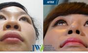Chuyên gia bật mí cách cải thiện cánh mũi to bè