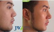 Nâng mũi cho nam giới và phụ nữ có gì khác biệt?