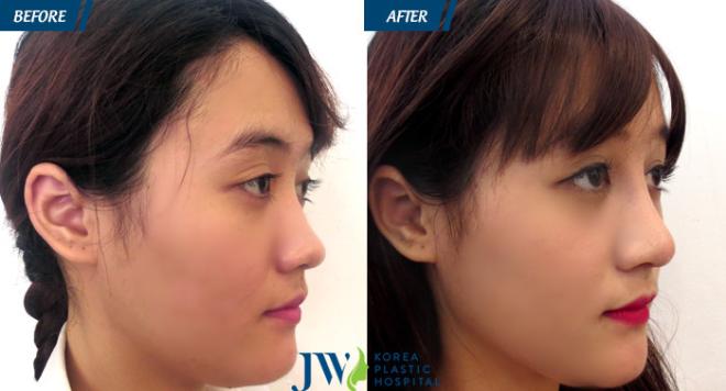 S Line Plus giảm thiểu nỗi lo về tình trạng da mũi mỏng.