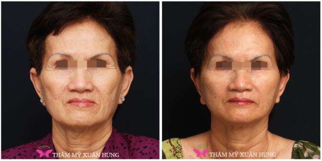 Căng da mặt bằng chỉ giúp nhiều trường hợp trẻ hơn tuổi.