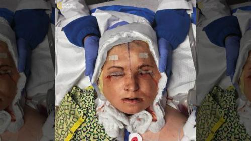 Y sĩ cố định đầu của Katie sau 31 tiếng phẫu thuật. Mắt nữ bệnh nhân cũng được dán băng dính để tránh tổn thương. Ảnh: NG.