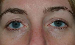 Kính áp tròng 28 năm gắn chặt trong mí mắt người phụ nữ