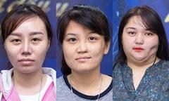 Ba cô gái được hỗ trợ hàng tỷ đồng phẫu thuật hàm mặt