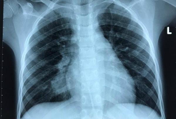 Xquang của bệnh nhân trước can thiệp.