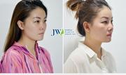 Tái phẫu thuật mũi cho người phụ nữ Singapore