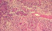 Cô gái nhiễm vi khuẩn ăn thịt người qua đường tình dục