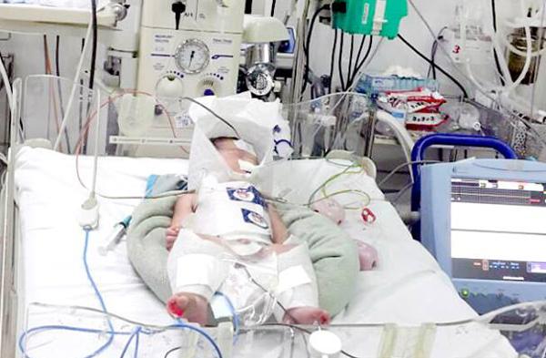 Em bé trong khi điều trị tại Bệnh viện Nhi đồng 2. Ảnh bệnh viện cung cấp.