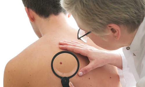 Đi đốt nốt ruồi mới phát hiện là khối u ung thư
