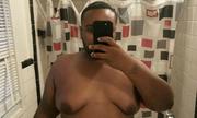 Chàng trai khốn khổ vì hội chứng nữ hóa tuyến vú