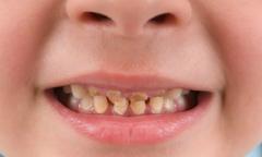 Bé trai 3 tuổi có 12 chiếc răng sữa bị mòn