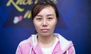 Người phụ nữ 8x bị biến dạng mũi vì ham thẩm mỹ giá rẻ