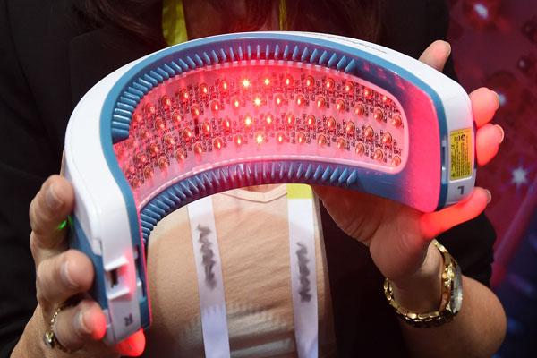 Ánh sáng laser trị liệu có tác dụng kích thích mọc tóc và tránh được nguy cơ rụng tóc. Ảnh: BL