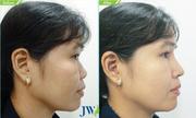Chuyên gia giải đáp vì sao mũi bị cứng sau nâng
