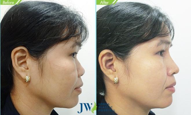 Nâng mũi phải đem lại hiệu quả thẩm mỹ và không hại sức khỏe.